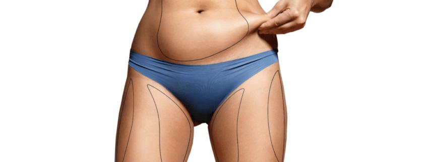 Warum Bauchfett gefährlich ist Fett am Bauch loswerden